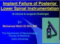 ImplantFailure